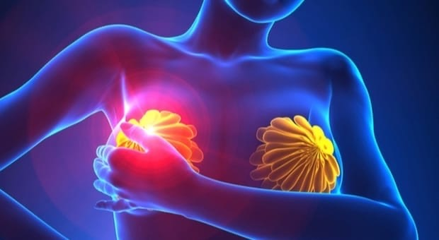 Il tessuto connettivo e i tumori